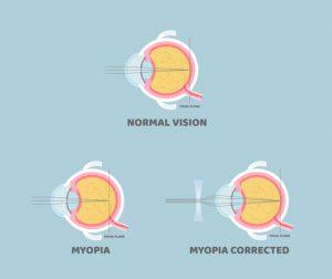 Myopia Infographic