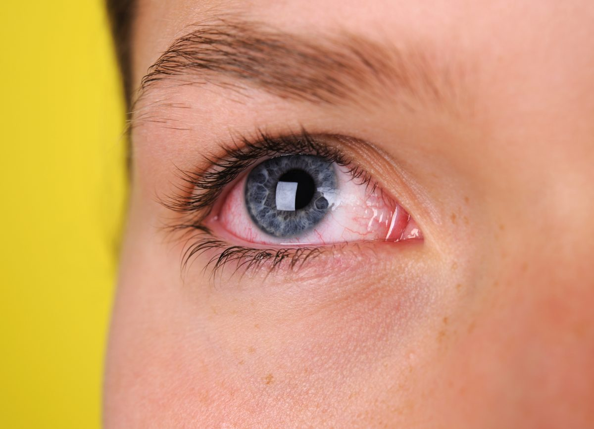 Dealing with a Scratched Eye